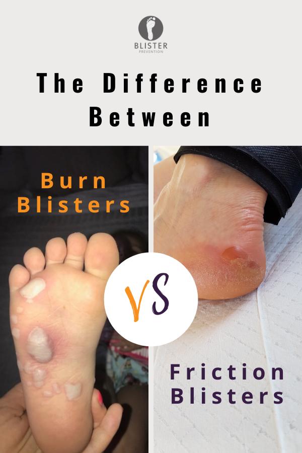 Burn Blister Versus Friction Blister Blister Prevention In 2020 Blister Treatment Burn Blister Treatment Blisters