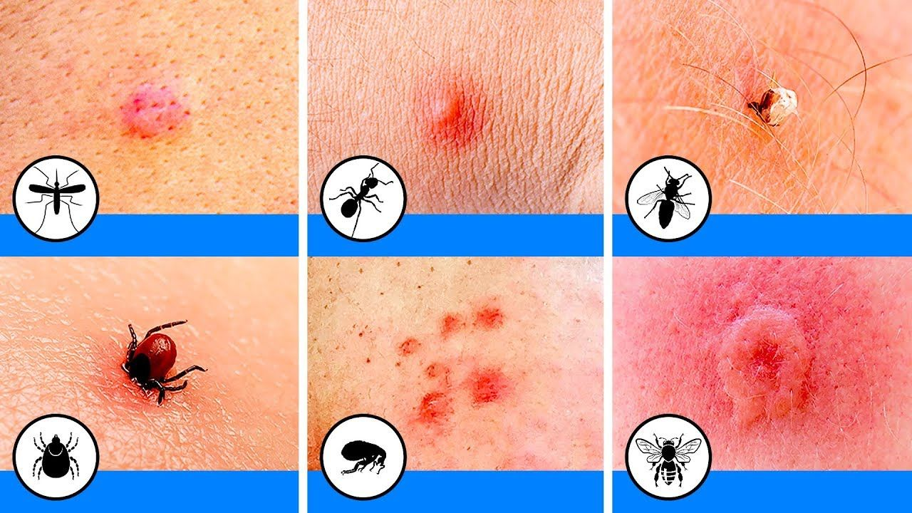 10 Bug Bites You Should Be Able to Identify Bug bites
