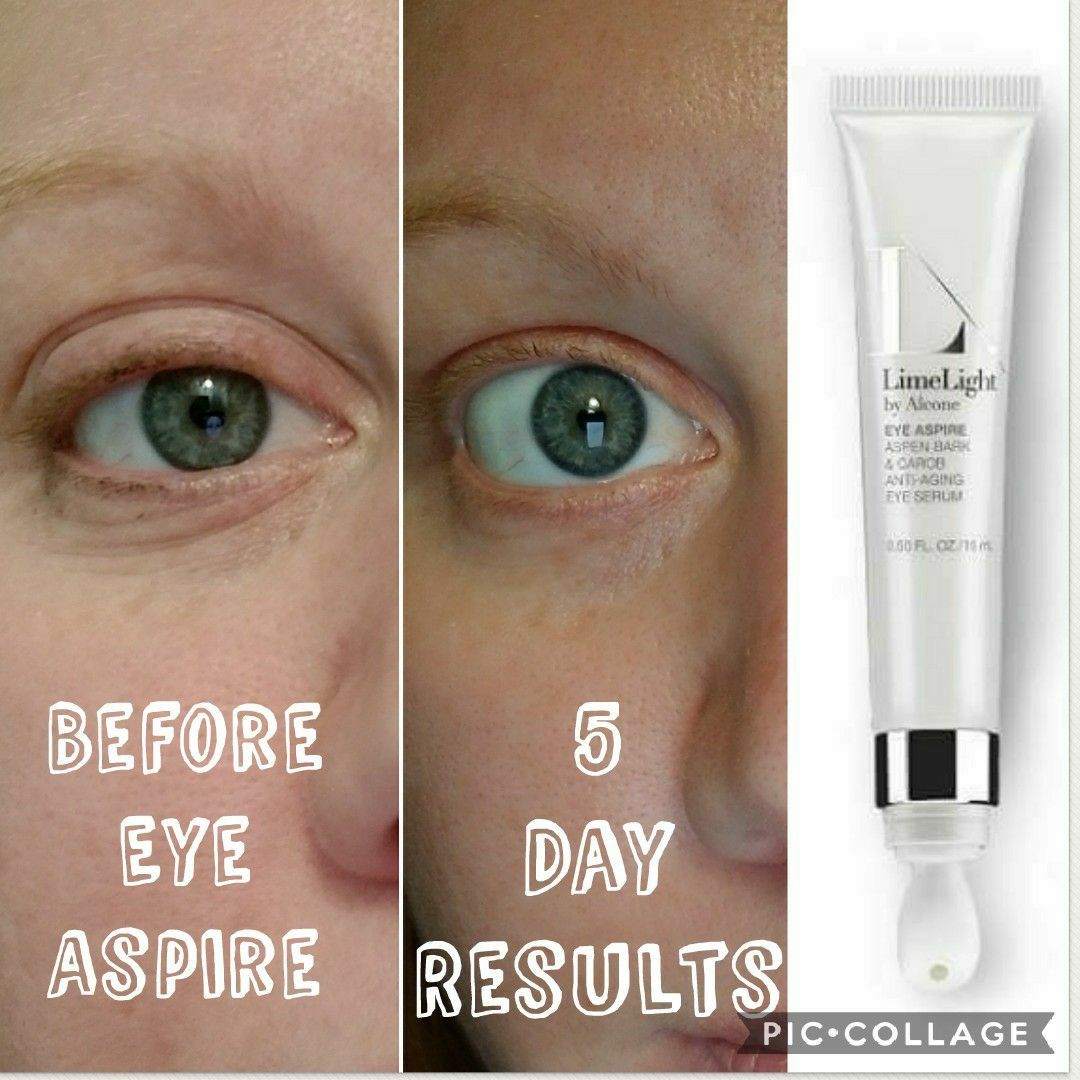 LimeLight Eye Aspire results! https//www.limelifebyalcone