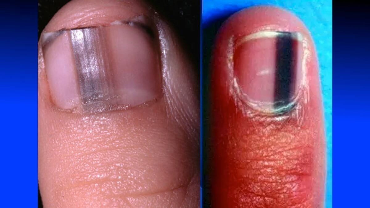 If You Ever Develop A Black Mark On Your Fingernail Like THIS, Rush ...