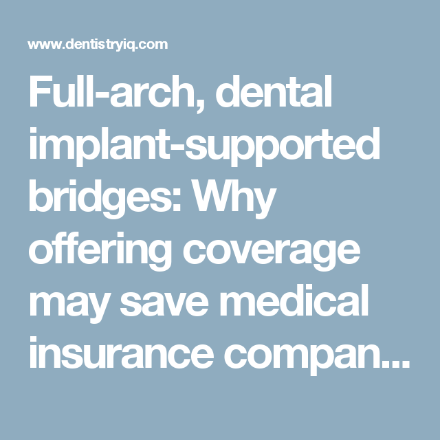 Full Arch Dental Implant Supported Bridges Why Offering Coverage