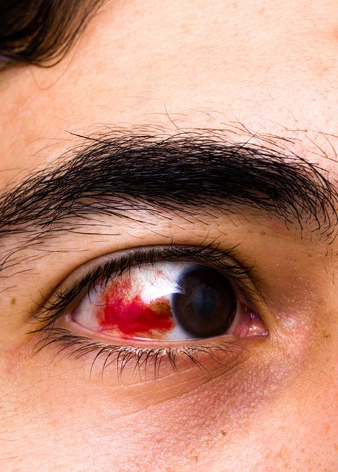 What Causes Blood In Your Eyes Subconjunctival Hemorrhages