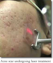 Procedure for acne scars laser treatment all about procedure for acne scars laser treatment all about hyperpigmentation treatment httpmeladermpigmentreducingcomplex ccuart Image collections