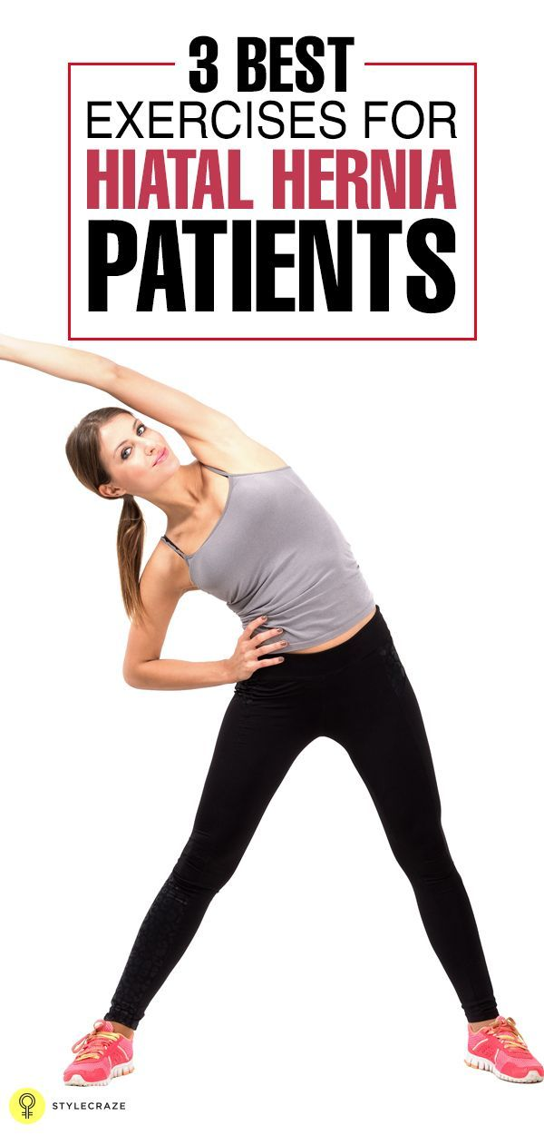 3 Best Exercises For Hiatal Hernia Patients Exercises