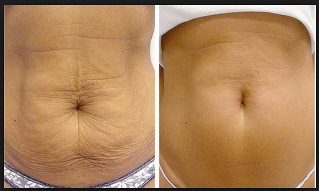 How To Get Rid Of Saggy Belly Fastly And Easily Without Surgery Saggy Skin Loose Skin Natural Skin Tightening