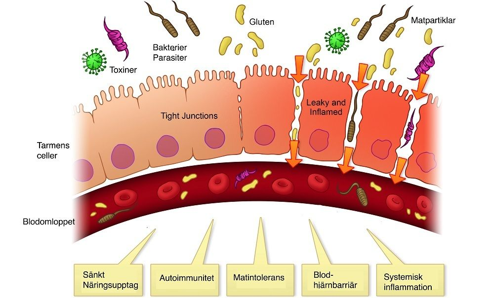 tarm inflammation symptom