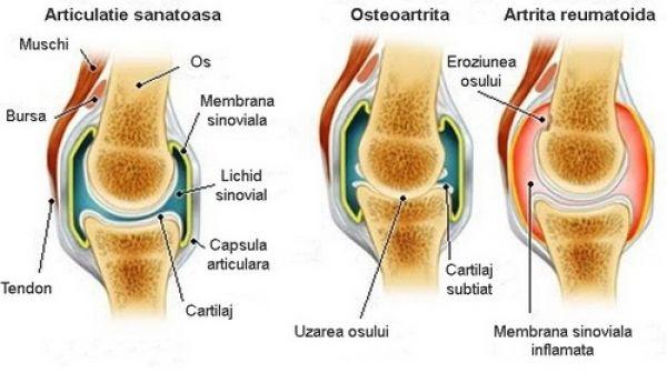 Artrita reumatoida (reumatismul) si osteoartrita: Cauze si tratamente | experttraining.ro