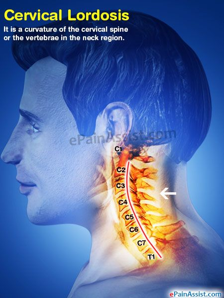 Cervical Lordosis  Medical  Neck injury Pinched nerve