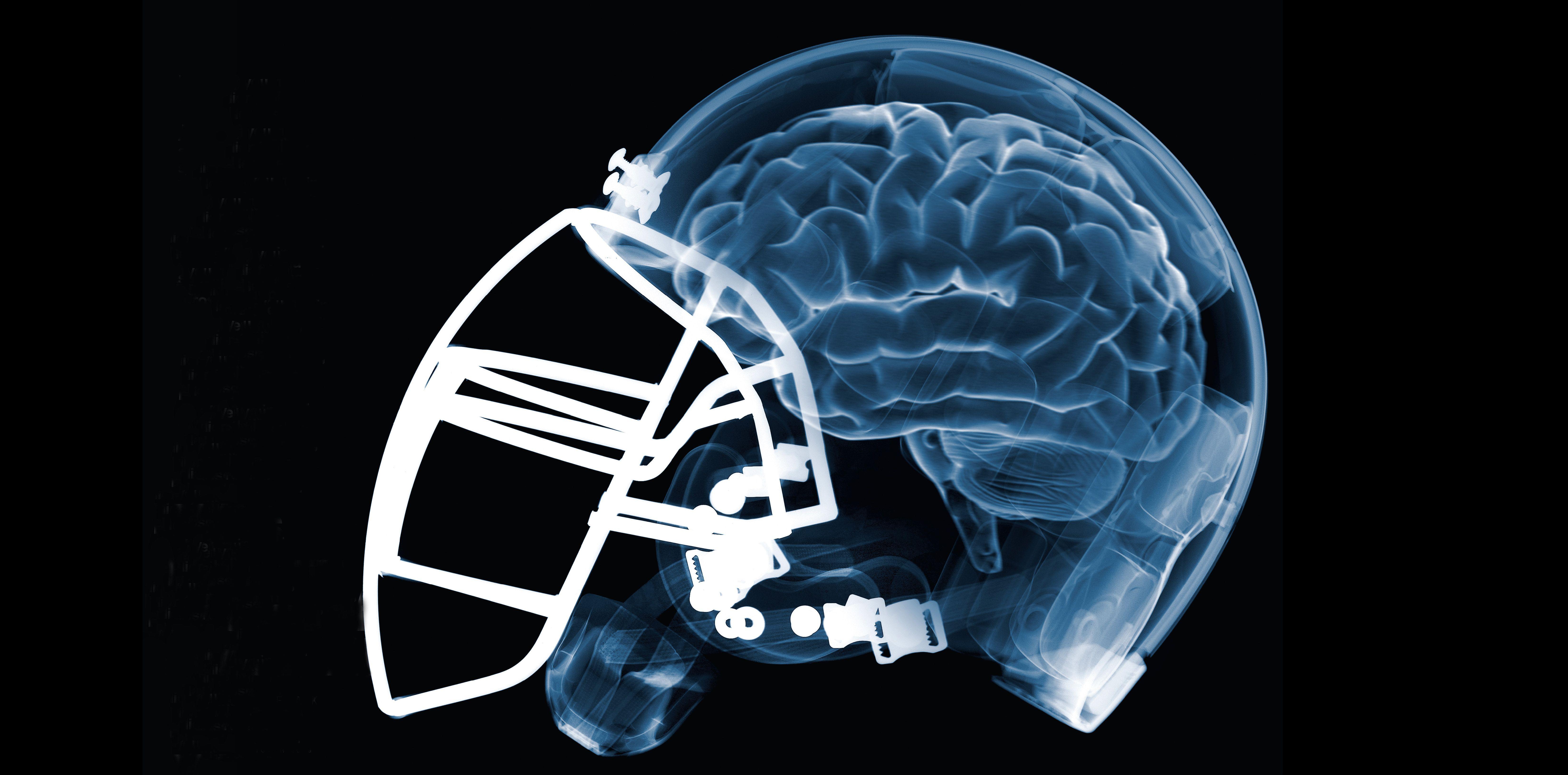 Football Injuries Chronic Traumatic Encephalopathy Cte