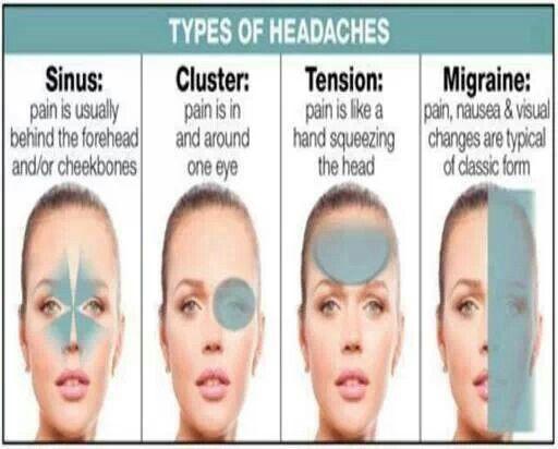 types of headaches vitamins pinterest vitamins