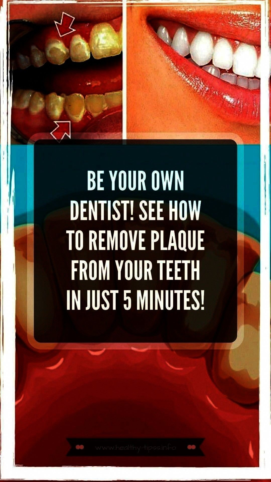 #oralhealthandhygiene #alwaysusually #firstdentists #healthfirst #toothpaste #healthcare #answerare...
