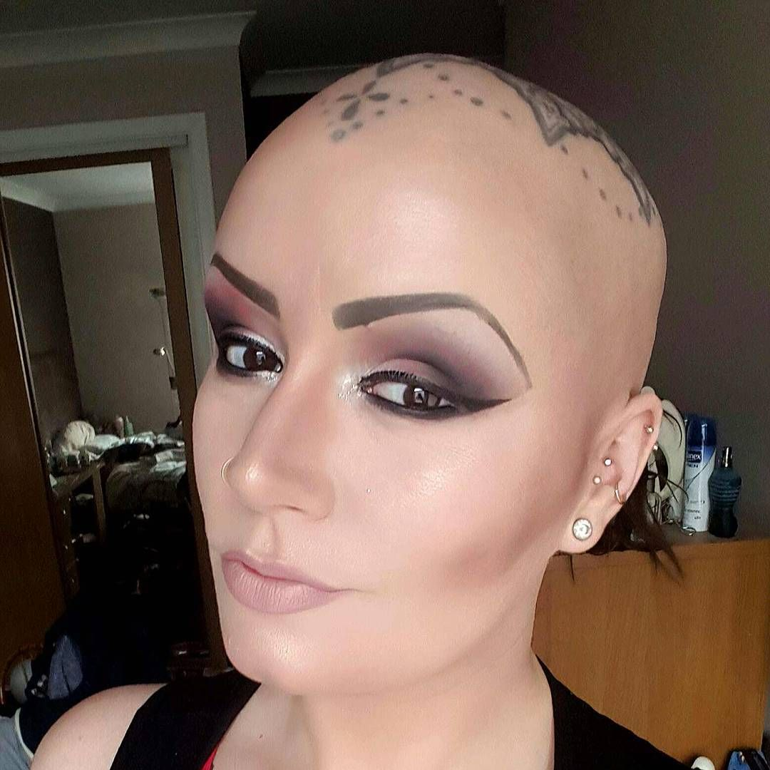 12 Things People Living With Alopecia Want You To Know