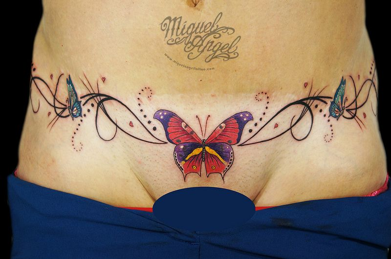 Custom Butterflies and swirly pattern tattoo over tummy tuck ...