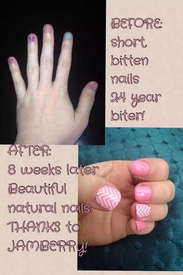 growing your nails out naturally!   Nail Biter   Pinterest