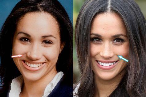 Dünnes Gesicht vor und nach Prominenten