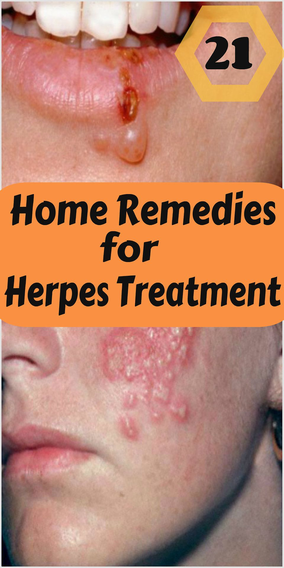 Natural Treatment For Genital Herpes Sores
