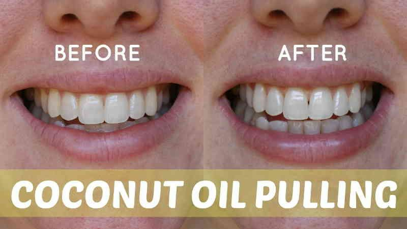 Betere Have Stronger Teeth and Gums with Coconut Oil Pulling (With images RF-59
