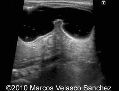 fetal stomach ultrasound - Google Search | ob/gyn | Pinterest ...