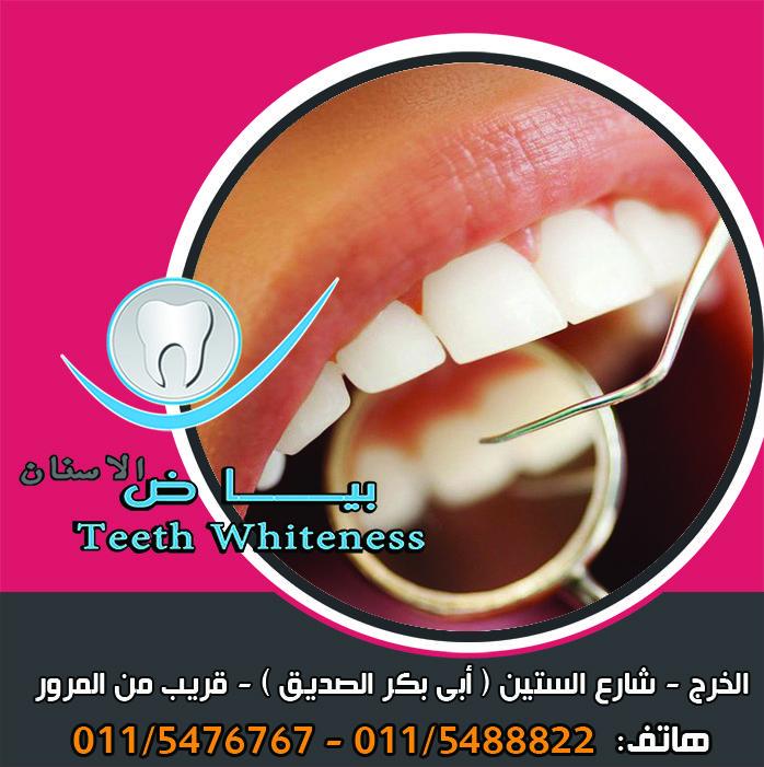 تنقسم تركيبات الأسنان لنوعين تركيبات ثابتة وتركبات متحركة ولكل منها أقسامه وحالات استعاملها حسب الحالة و ما تحتاجه من النوعين مركز بياض الاسنان للتوا Teeth