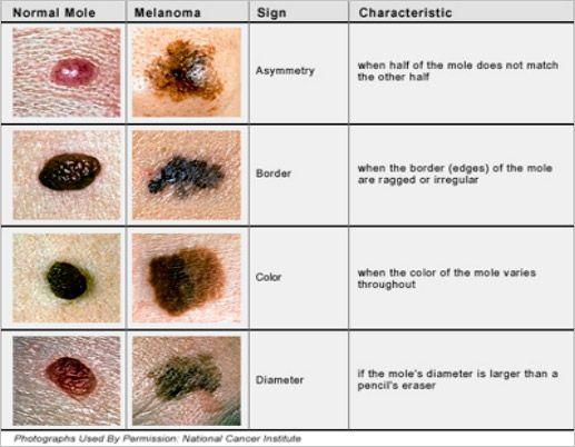 Skin Lesion Chart