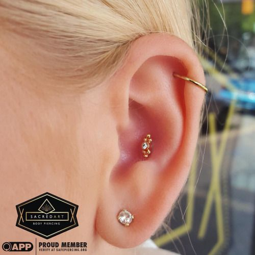 Healed Conch Piercing With An 18K Gold Sabrina End From Anatometal