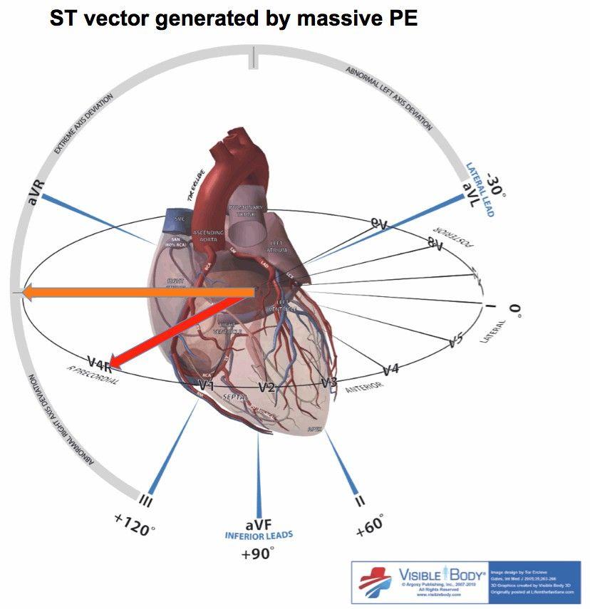 Two EKG patterns of pulmonary embolism which mimic MI
