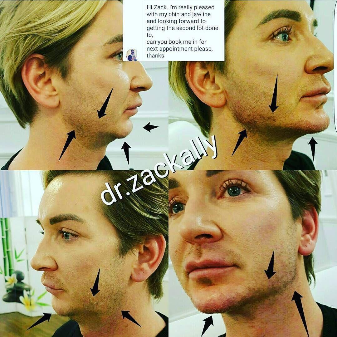 chin, jawline and mandibular angle augmentation using