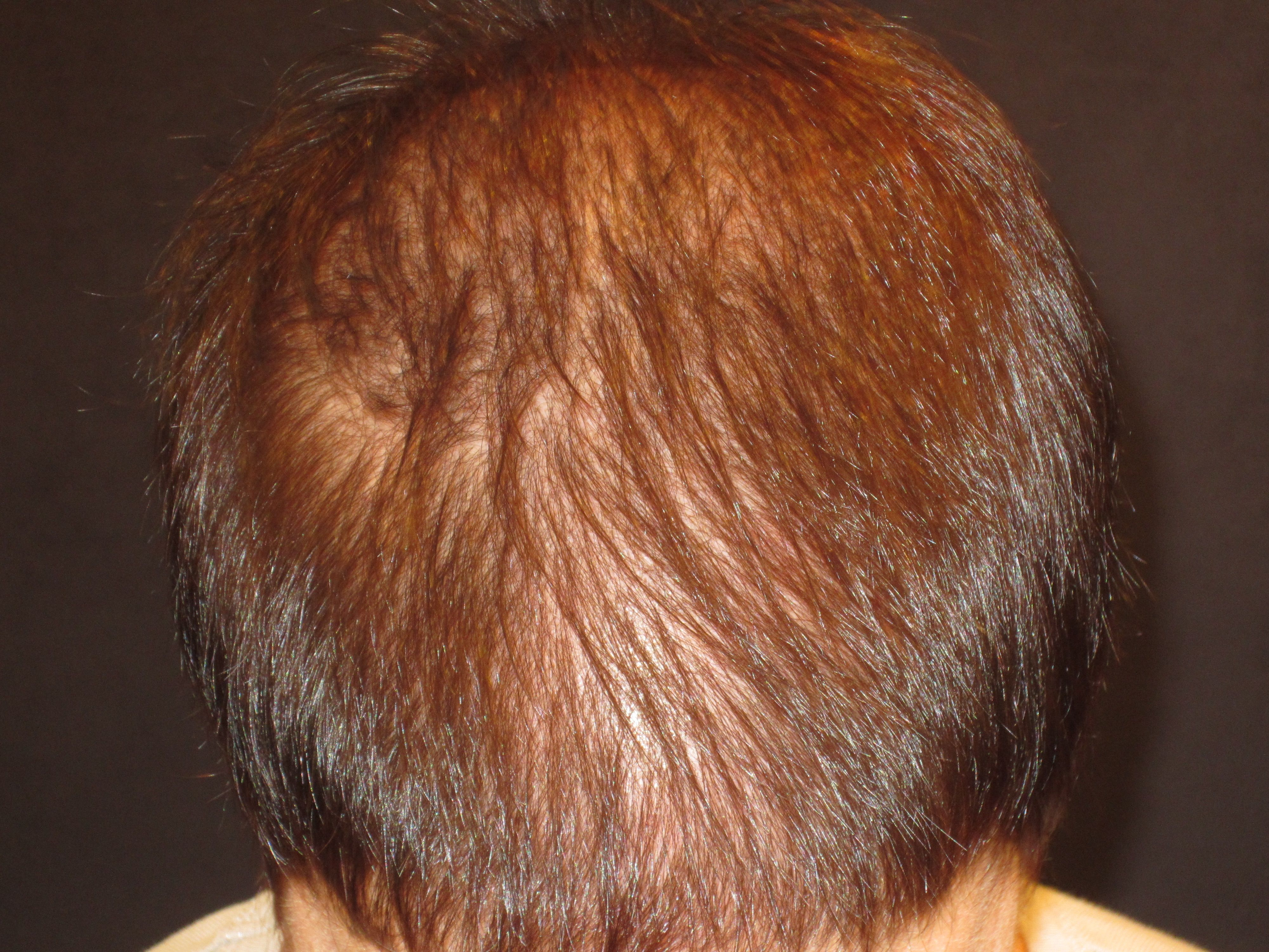 Saw palmetto hair loss female