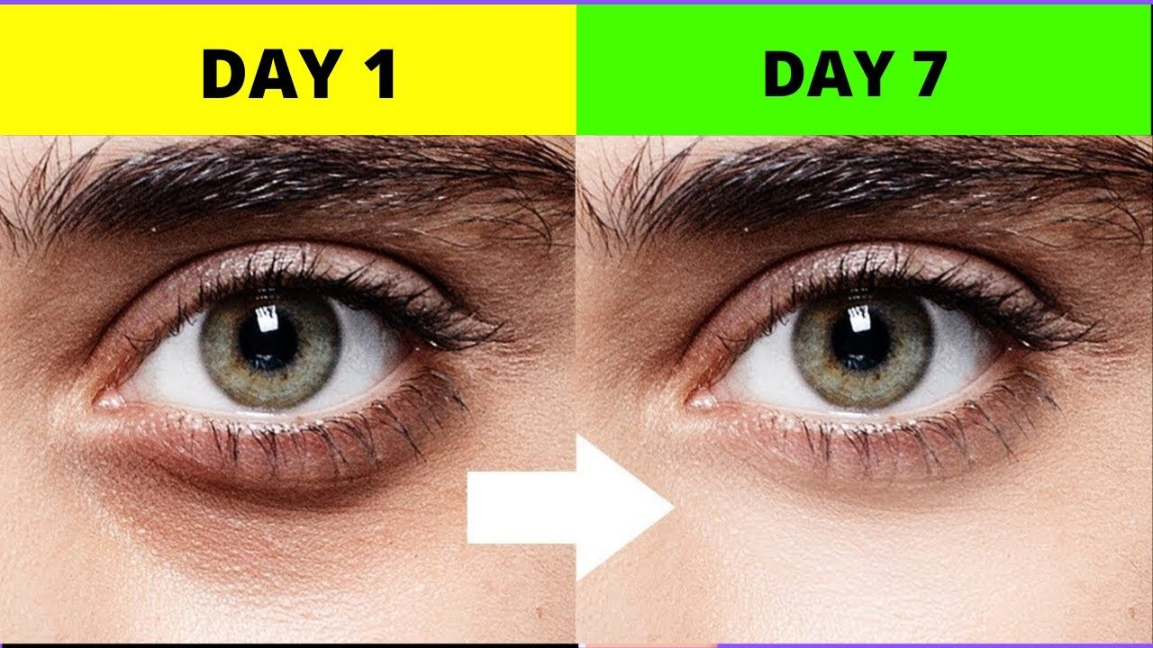How to remove dark circle under your eyes get rid of