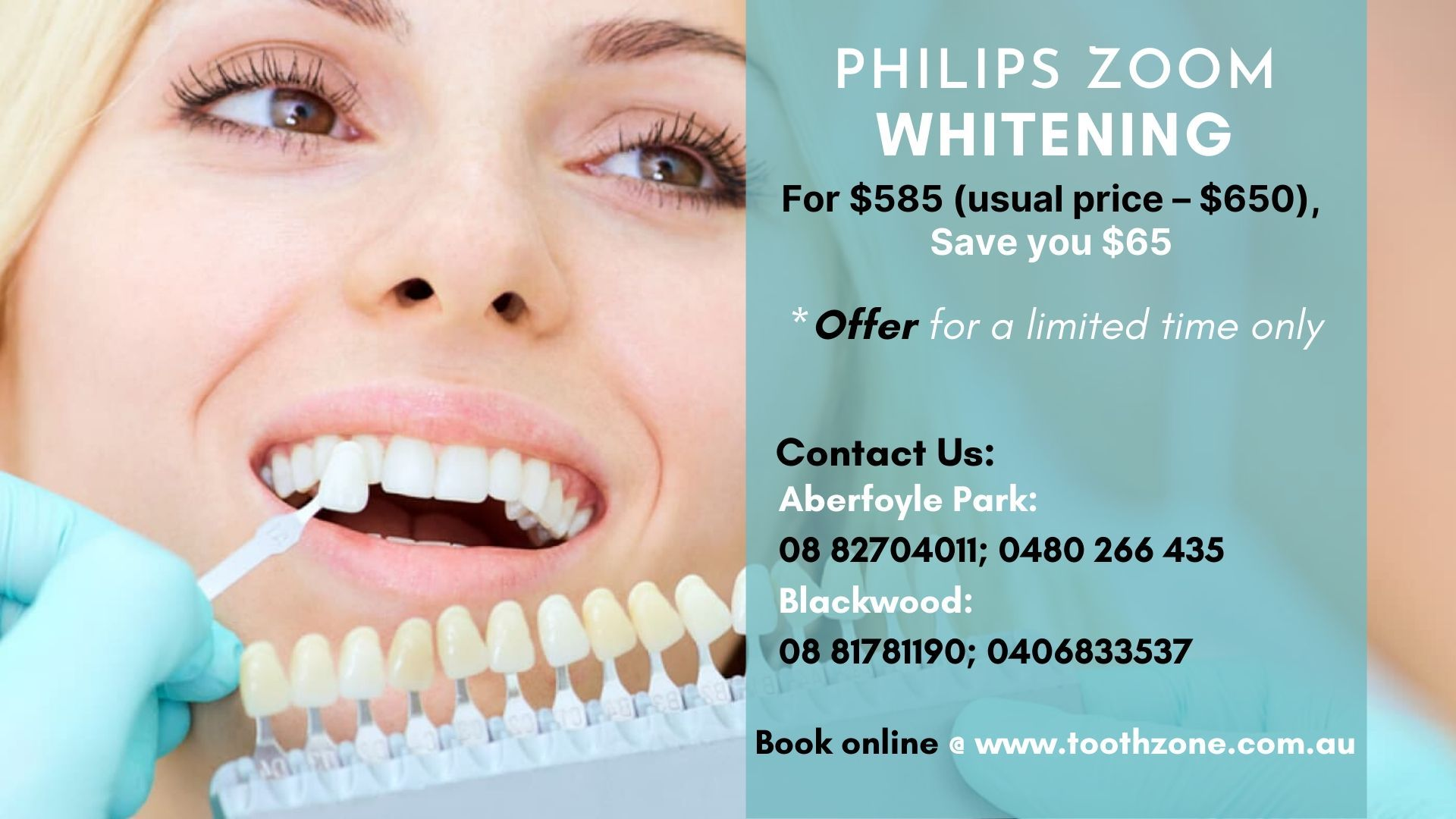 Teeth Whitening In Adelaide's South - Aldinga Dental Cinic - Call Us Today
