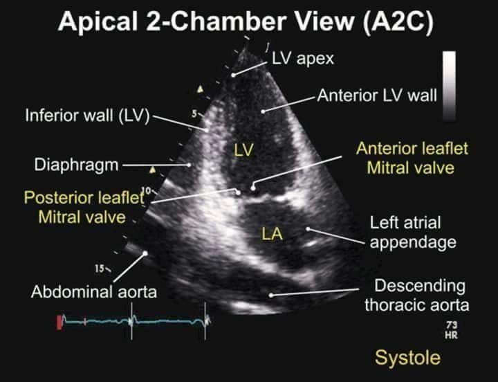 Apical 2 Chamber View TEE   echo   Pinterest   Medicina y Cardiología