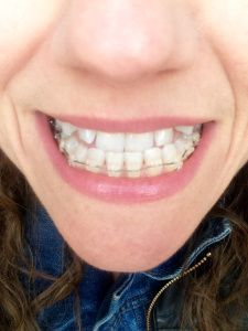 [First impressions] Introduction to braces…