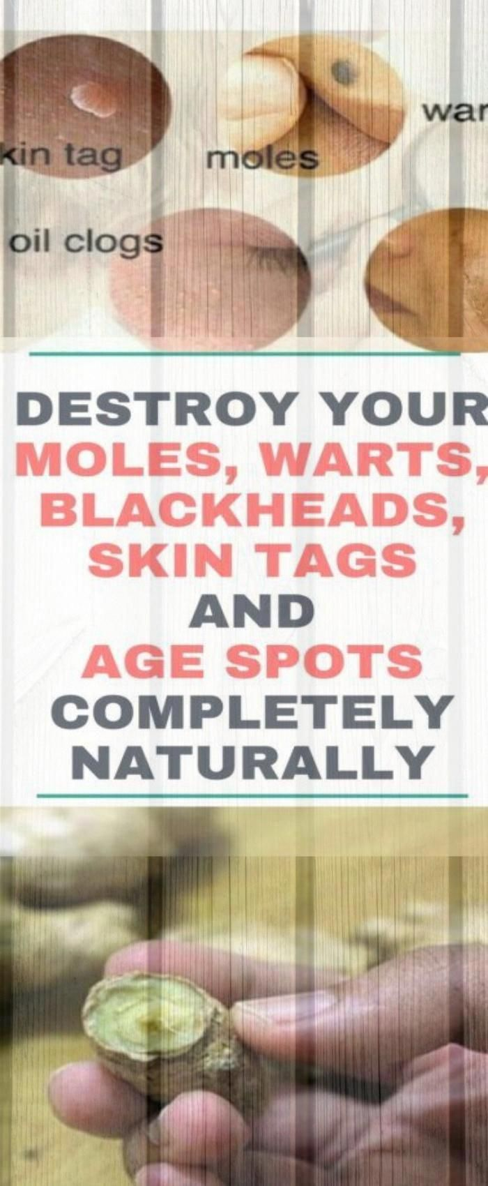 Destroy You Moles, Warts, Blackheads, Skin Tags & Age Spots Completely Naturally #Destroy #You #Mole...