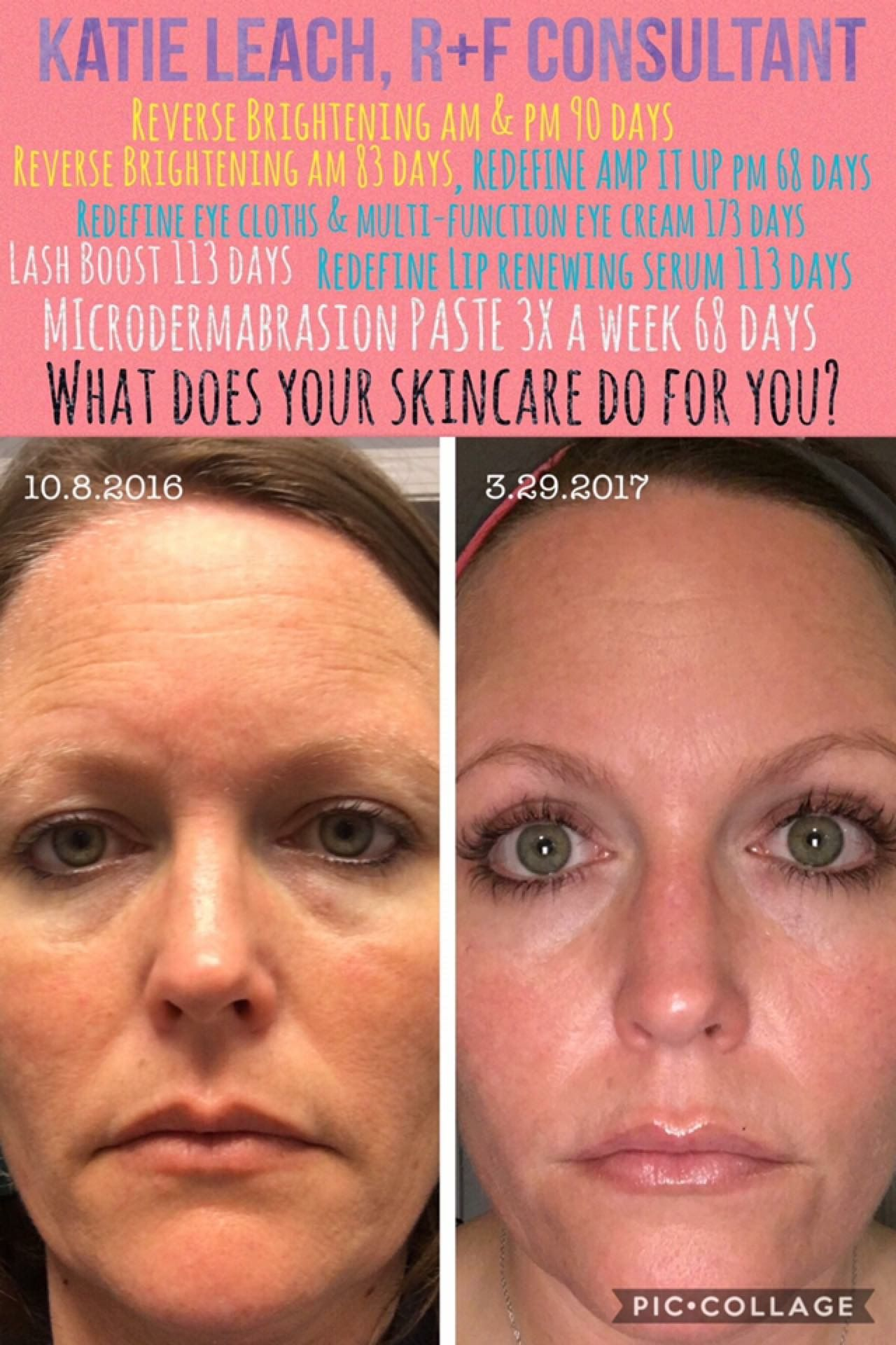From Katie Y All I Am Floored By My Results Who Knew When I Finally Decided To Start Using Rodan Eye Cream Essential Oils For Face Microdermabrasion Paste