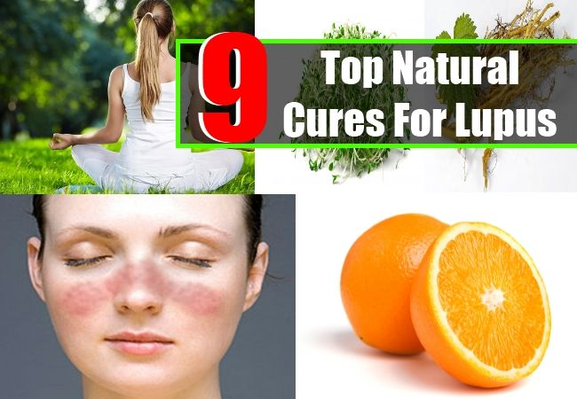 Top Natural Cures For Lupus Health And Exercise Pinterest