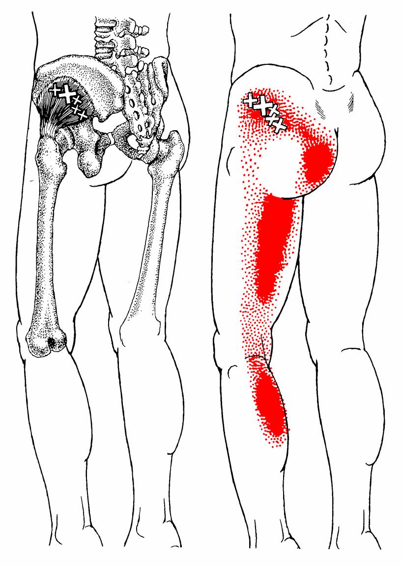 Kleiner Gesäßmuskel | The Trigger Point & Referred Pain Guide ...