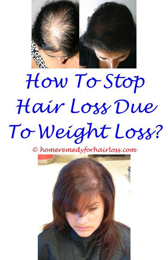 Hair Growth Cream | Hair loss, Dead sea salt and Dandruff