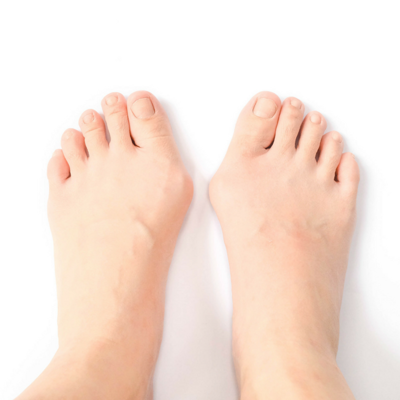 If you want to learn how to get rid of bunions, know that there are treatment and prevention options available that can bring relief and get you back to a more active lifestyle.  http://qoo.ly/hg5q6