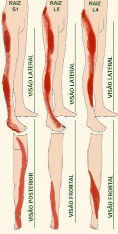 Dor Ciatica O Que E Exercicio Do Nervo Ciatico Dor Ciatica