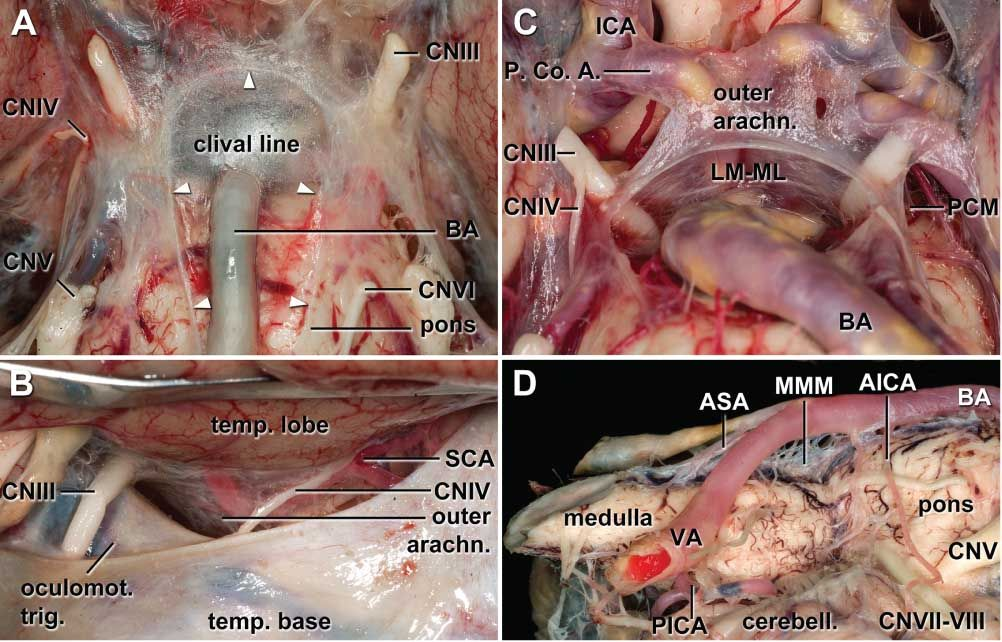 Endoscopic Anatomical Study Of The Arachnoid Architecture On The