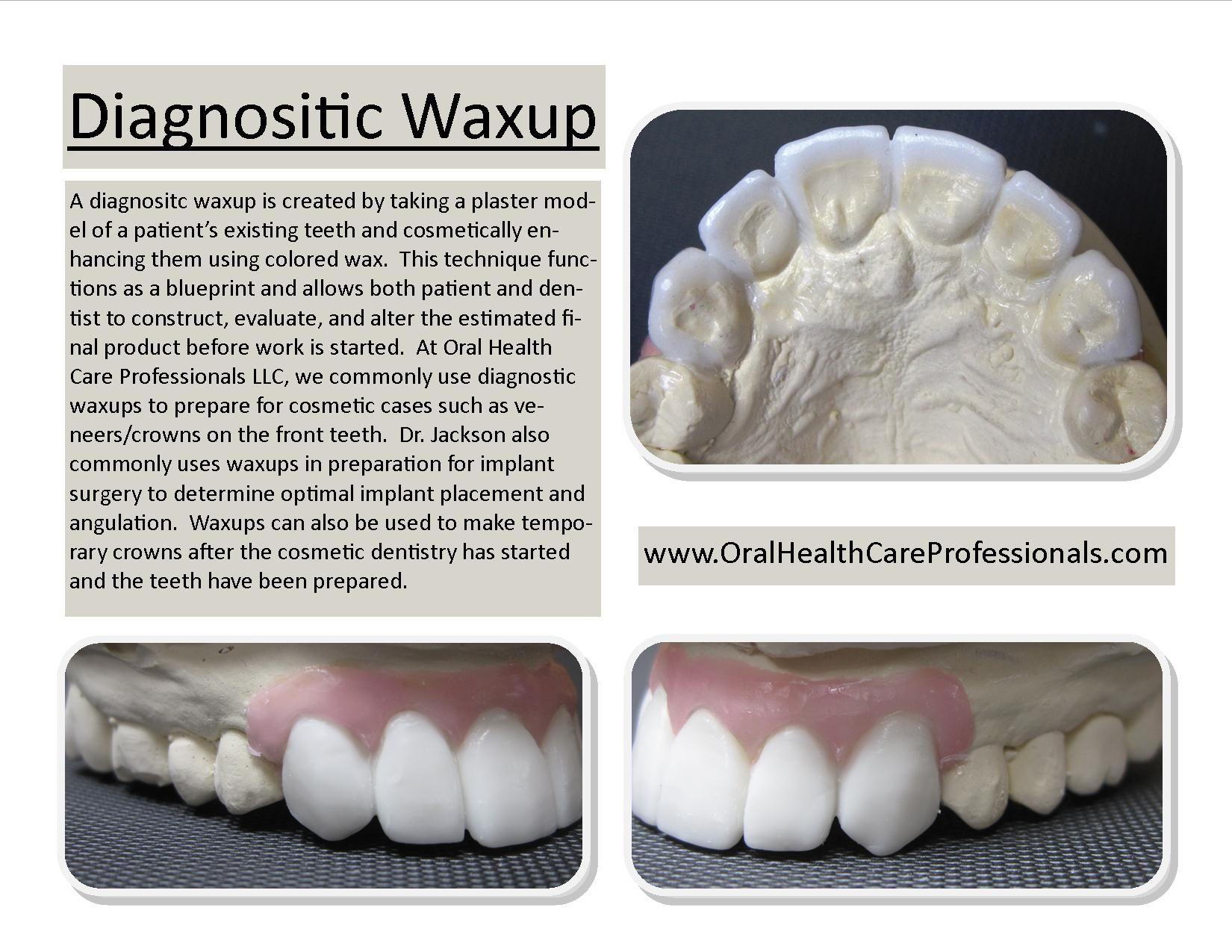 Oral Health Care Professionals Llc Jeffrey S Wascher Dds Eric G Jackson Dds Dentist Downers Grove Il 60515 Dental Dental Hygienist Gifts Dental Ceramics