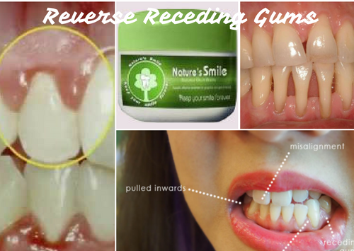 The Best Way To Reverse Receding Gums Without Surgery