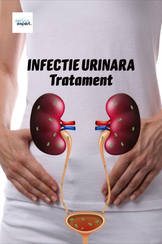 Urina din varice ajută?
