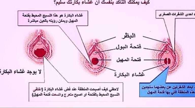 غشاء البكارة معلومات مهمة يجب معرفتها Words Map Arabic Words