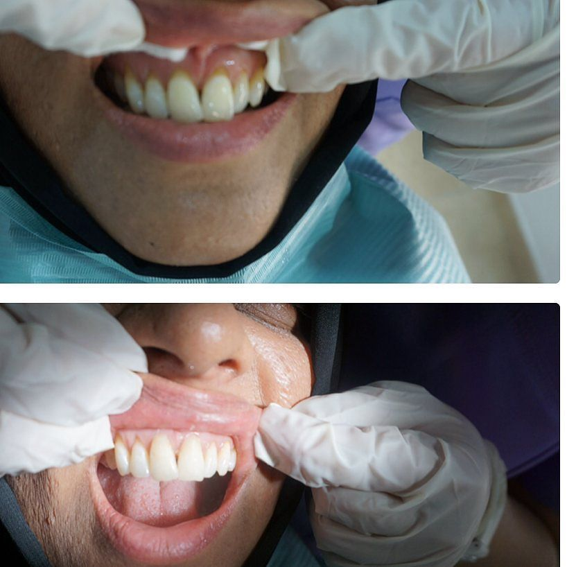 Pin by Image Dental on Cosmetic Dentistry Cosmetic