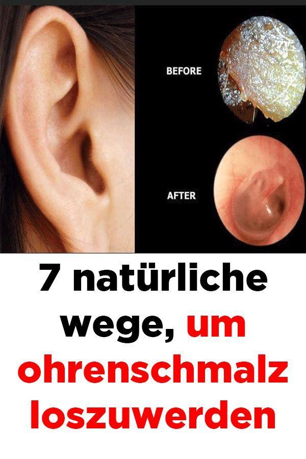 7 Natürliche Wege Um Ohrenschmalz Loszuwerden Beauty Hacks Diy Beauty Beauty
