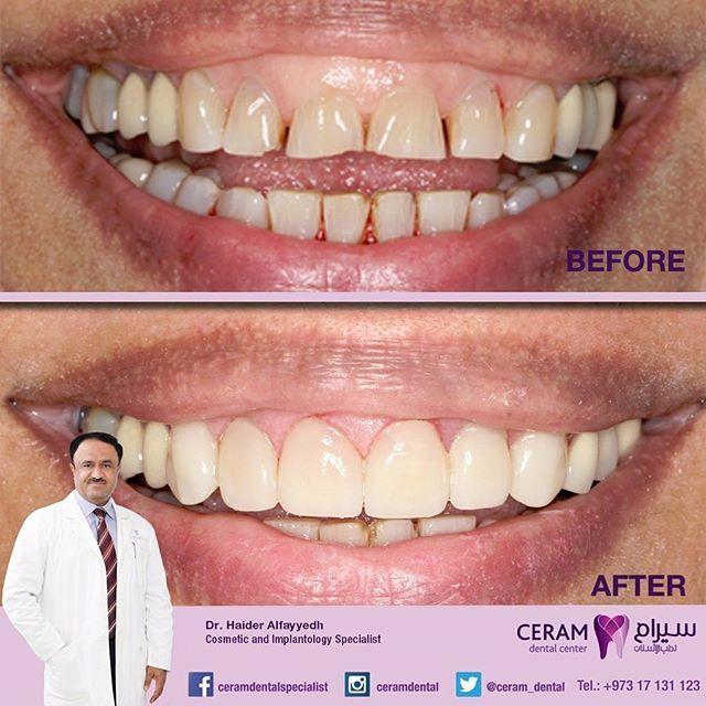 Ceram Specialist Dental Center On Instagram Emax Veneers With Laser Gum Correction By Dr Haider Alfayyadh Cosmetic And Im Dental Center Dental Implantology