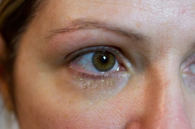 Treatment milia under eyes home How To