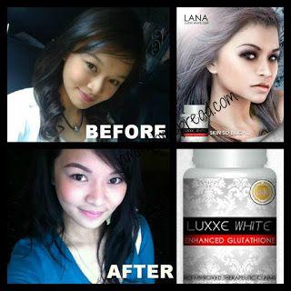 jamdaquio: Luxxe White Enhanced Glutathione Accelerator