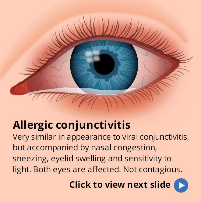 how to stop the corner of your eye from twitching